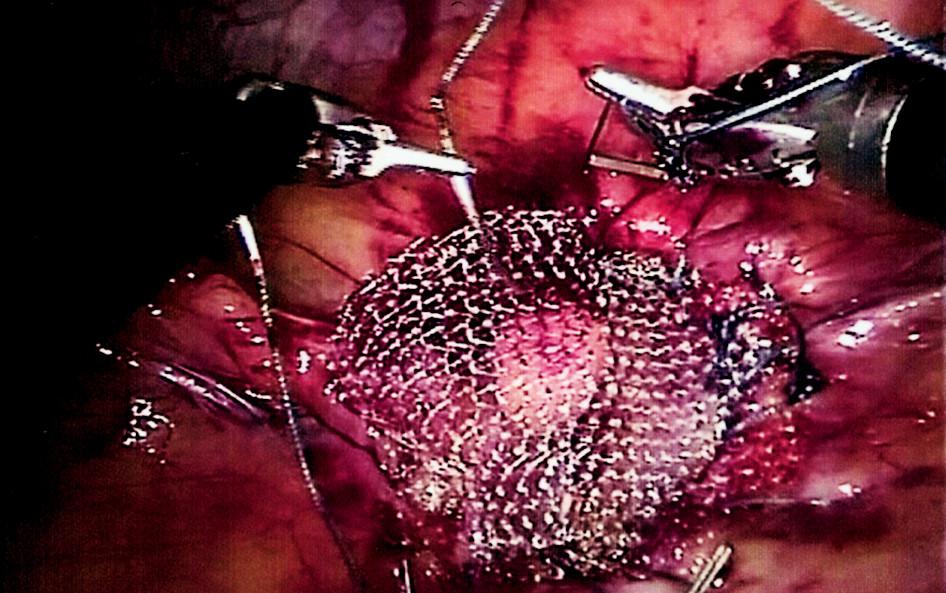 Robotický uzávěr kýlní branky prolenovou síťkou Fig. 5. Robotic hernioplasty using a prolene mash