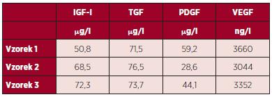 Výsledky měření hladiny vybraných destičkových faktorů v DL po lyofilizaci.