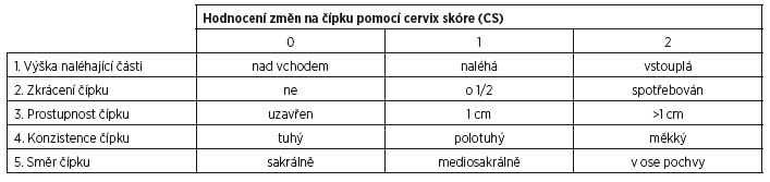 Schéma 6 Cervix skóre (CS) dle Bishopa – varianta 4 [8]