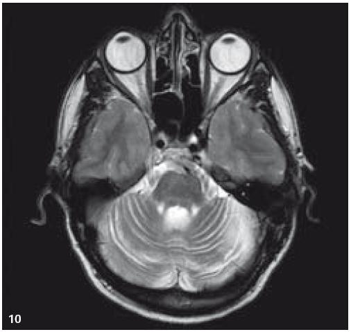 MR zobrazení. T2 TSE v axiální rovině: mozečková atrofie.