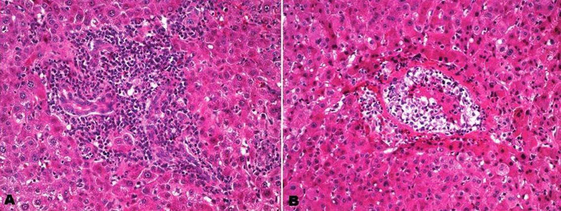Akutní celulární rejekce. Rejekční celulizace v portálním poli s aktivovanými lymfocyty a eozinofilními leukocyty, se zánětlivou alterací interlobulárního žlučovodu (A). Endotelialitida centrální vény se zánětlivou celulizací téměř obliterující venózní lumen (B). Hematoxylin-eozin, zvětšení 200x.