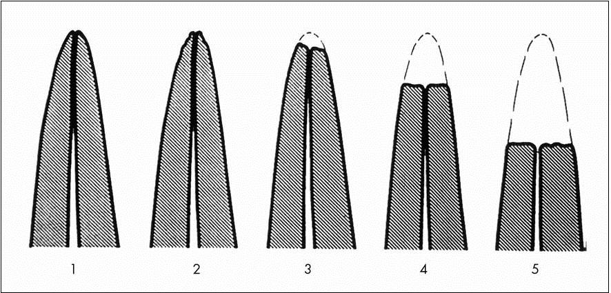 Schematický nákres hodnocení rozsahu apikálních kořenových resorpcí [20]
