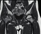 Magnetická rezonance ukazující Perthesovu chorobu pravého kyčelního kloubu. Fig. 3. MR image showing the affection of the right hip by Perthes disease.