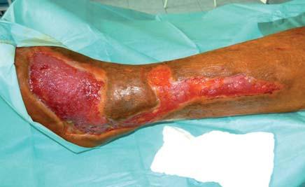 Pregranulovaný defekt pripravený na implatáciu dermoepidermálnych štepov