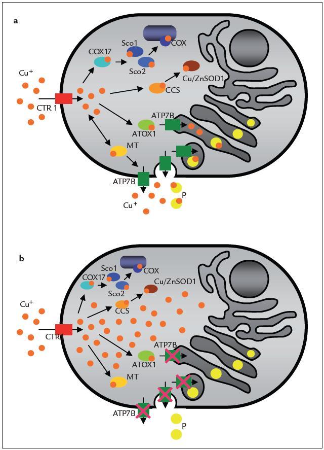 Schéma transportu mědi v buňce: a) fyziologický stav, b) patologický stav způsobený poruchou proteinu ATP7B při Wilsonově chorobě.  Cu<sup>+</sup> – atomy mědi, COX – cytochrom c oxidáza, P – protein (např. ceruloplazmin), MT – metallothionein, Cu/Zn SOD1, Cu/Zn superoxiddismutáza 1, CTR1 – přenašeč mědi, ATP7B – membránová ATP-áza – Wilsonův protein, COX17, Sco1, Sco2, CCS, ATOX1 – metalochaperony [23].