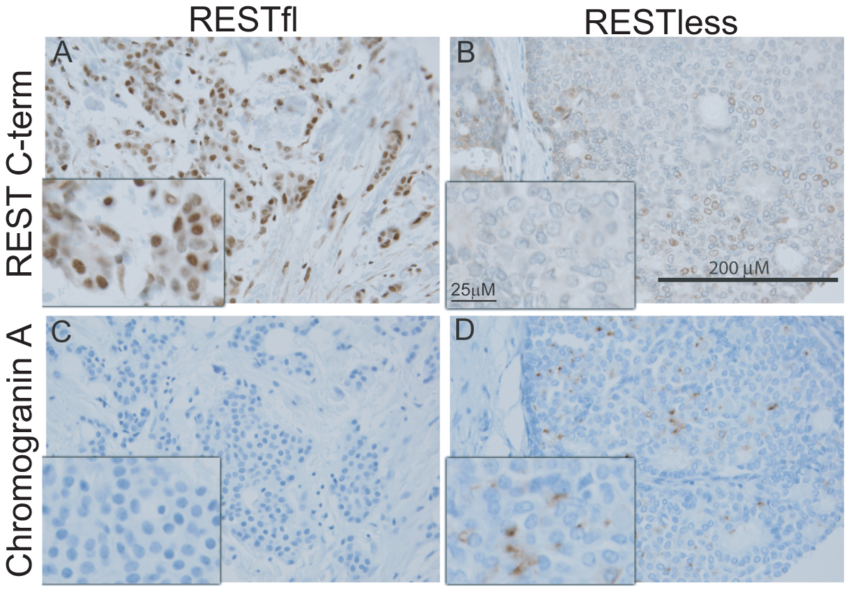 Immunohistochemical screen for functional REST in breast tumors.