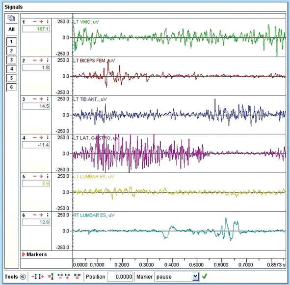 Záznam cyklistického kroku na suchu. V každém řádku je záznam elektrické aktivity svalu v jednotkách μV.Ve spodní části záznamu je časová osa. Je zachycen cyklistický krok s délkou 0,8573 s. Časové rozmezí mezi jednotlivými kvadranty je přibližně 0,21 s. LT VMO zeleně - m. vastus medialis, LT BICEPS FEM červeně - m. biceps femoris, LT TIB ANT tmavě modře - m. tibialis anterior, LT LAT GASTRO fialově - m. gastrocnemius lateralis, RT LUMBAR ES světle modře - mm. paravertebrales dx., LT LUMBAR ES žlutě - mm. paravertebrales sin.