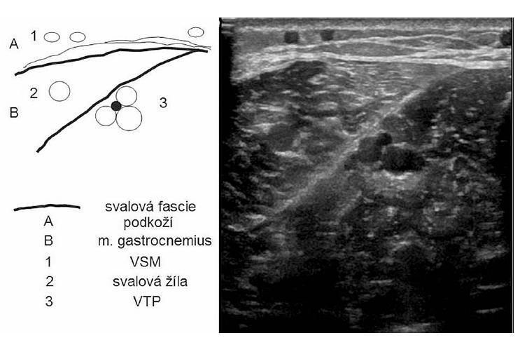 Příčný ultrasonografický řez lýtkem, přes mediální hlavu m. gastrocnemius