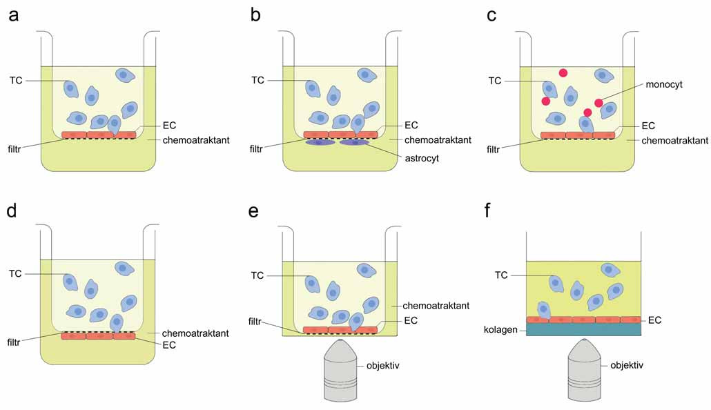 Schematické znázornění statických systémů pro detekci TEM. A. Základní složky transwell systému TEM; B. transwell model krevně-mozkové bariéry; C. modifi kace transwell metodiky: TEM v přítomnosti krevních buněk; D. transwell model pro studium intravazace in vitro; E. transwell inzert v misce se skleněným dnem pro mikroskopickou detekci TEM; F. 3D model TEM. TC – nádorová buňka, EC – endoteliální buňka