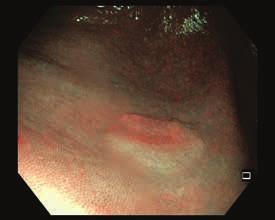 Nepolypoidní léze na dně céka, 0–IIa. Zobrazení v NBI.