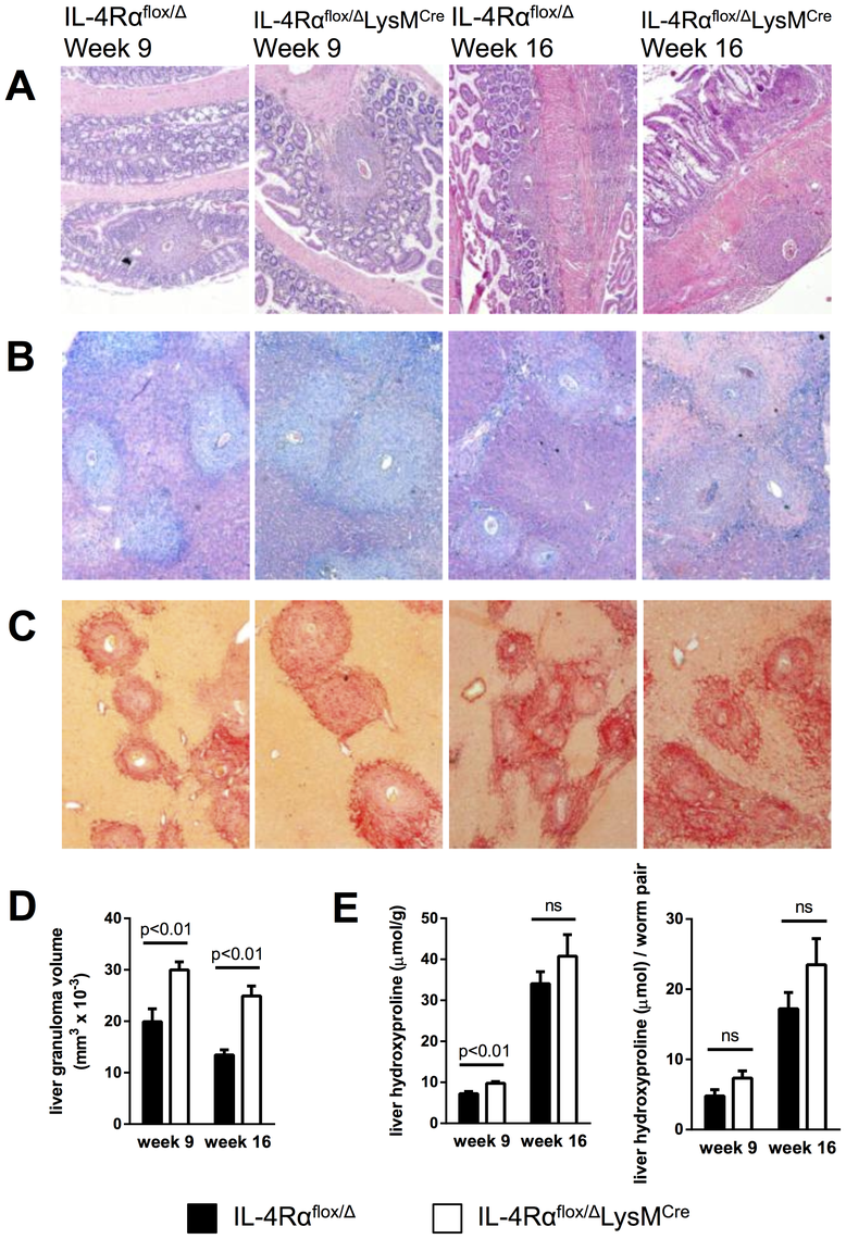 Inflammation but not fibrosis is exacerbated in chronically infected IL-4Rα<sup>flox/Δ</sup>LysM<sup>Cre</sup> mice.
