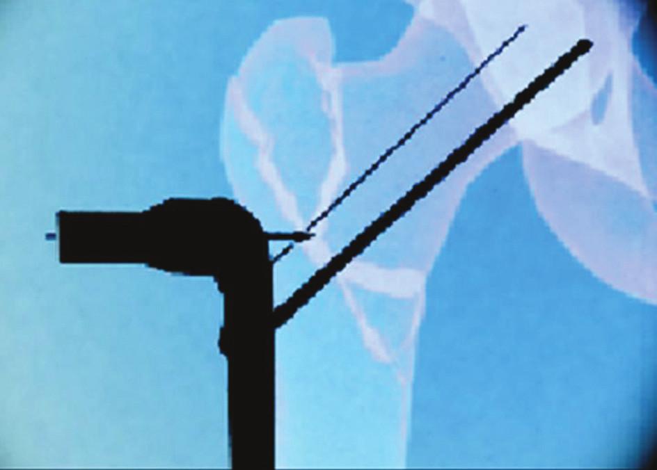 Template položený na monitor zobrazí na zreponované zlomenině místo první incize a bod, kam je třeba připinovat dlahu se zavaděčem Fig. 3. Atemplate placed on the monitor highlights a place on the repositioned fracture, where the first incision was made, and the spot for pinning