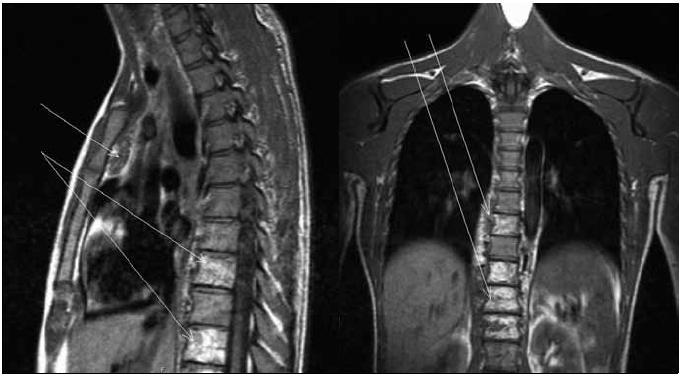 Obr. 1 a 2. MR vyšetření mediastina ze dne 26. 8. 2005. T1 vážený obraz v sagitální (obr. 1) a koronární (obr. 2) rovině – po zahájení léčby – patologická tkáň v předním mediastinu retrosternálně má v T1 smíšeně nízký signál a je jednoznačně ohraničena oproti okolnímu tuku (šipka). Oboustranná infiltrace paravertebrálně navazuje na obratlová těla, která mají abnormální strukturu (Th<sub>8,10,12</sub>), což je obraz hemagiomatózy postihující skelet i měkké tkáně.