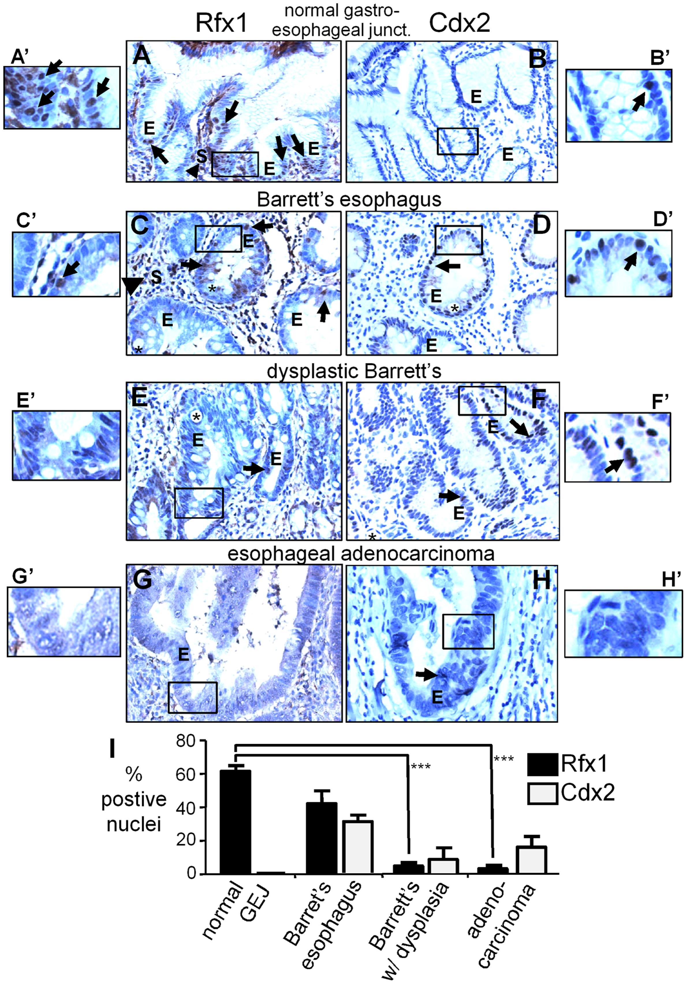 Rfx1 downregulation in esophageal adenocarcinoma.