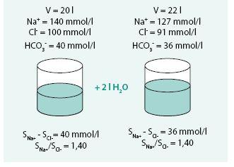 Model retence bezsolutové vody (diluční hyponatremie euvolemická)