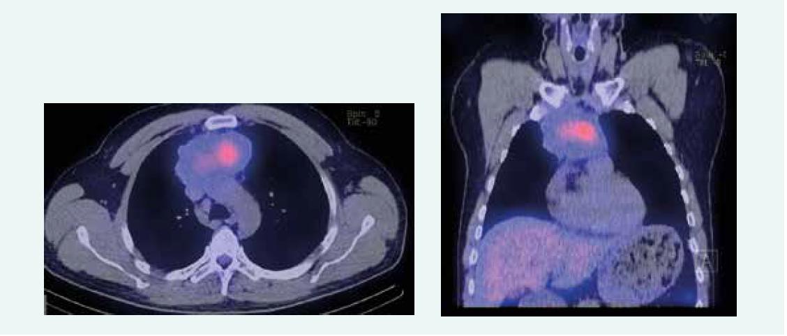 Zobrazenie tumoru po poslednej aplikácii PRRT. Z archívu spoluautorky MUDr. M. Černej, CSc.