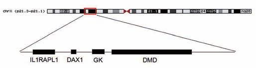 Mapa X chromozomu se zvýraznûnou oblastí p21.2p21.3, která je postižena mikrodelecí. Fig. 3. X-chromosome map with highlighting the area p21.2p21.3, which is affected by microdeletion.