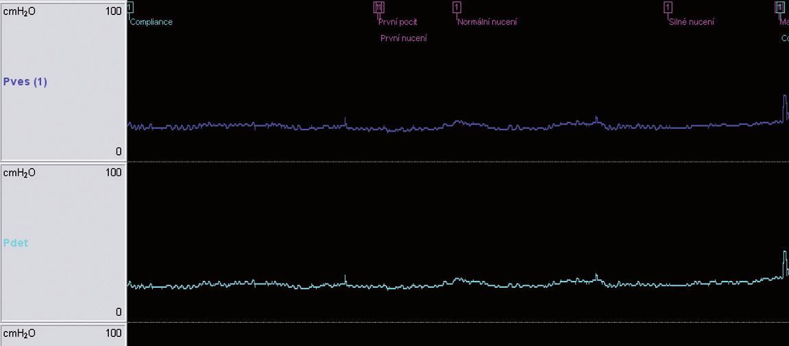 Cystometrické vyšetření pacientky ve 37. týdnu gravidity neprokázalo urgenci či patologickou aktivitu m. detrusor vesicae urinariae:<br> – maximální kapacita měchýře: 428 ml<br> – maximální vesikální tlak: 41 cm H<sub>2</sub>O<br> – maximální detrusorový tlak: 44 cm H<sub>2</sub>O