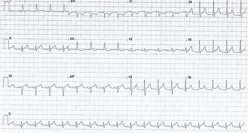 Electrocardiogram showing widespread ST elevation