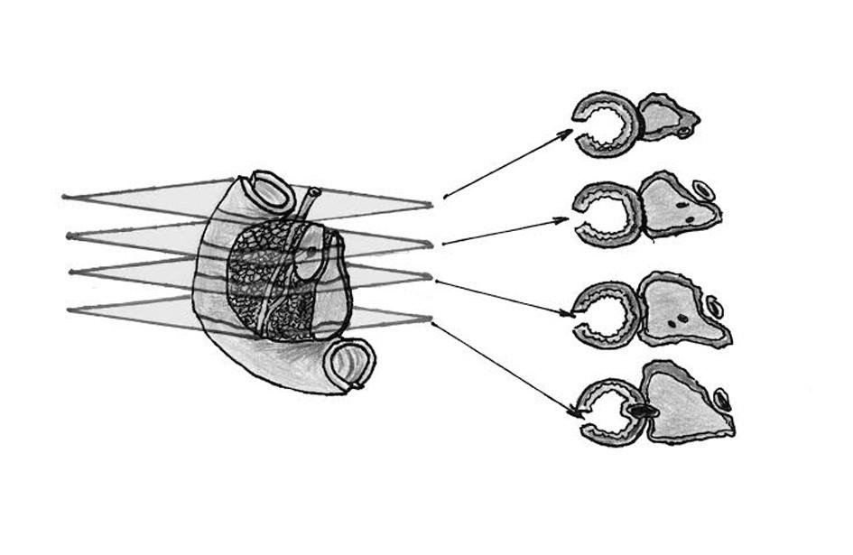 Schéma přikrojení resekátu hemipankreatoduodenektomie dle LEEPP  Hlava pankreatu je po označení resekčních linií a volných anatomických povrchů barevnými inkousty/tušemi sériově přikrojena v rovinách kolmých na podélnou osu sestupného úseku duodena. V každém ze získaných tkáňových řezů lze posoudit vztah k cirkumferenčním okrajům resekátu a pankreatický i žlučový vývod mohou být posouzeny v celém svém průběhu. Fig. 1: The scheme of tissue sampling of the hemipancreatoduodenectomy specimen using the LEEPP Following multicolour inking of resection margins and free anatomical surfaces, the pancreatic head is serially sectioned in planes perpendicular to the longitudinal axis of the descending duodenum. In every specimen slice, it is possible to evaluate the relationship to circumferential margins of the resection specimen and pancreatic and common bile duct can be examined in their entire length.