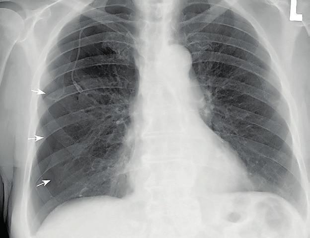 Skiagram hrudníku prokazuje parciální pneumothorax vpravo s jasně viditelnou linií viscerální pleury částečně kolabované pravé plíce (šipky)