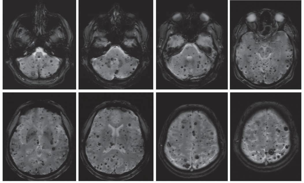 MR u pacientky s mnohočetnými kavernomy.