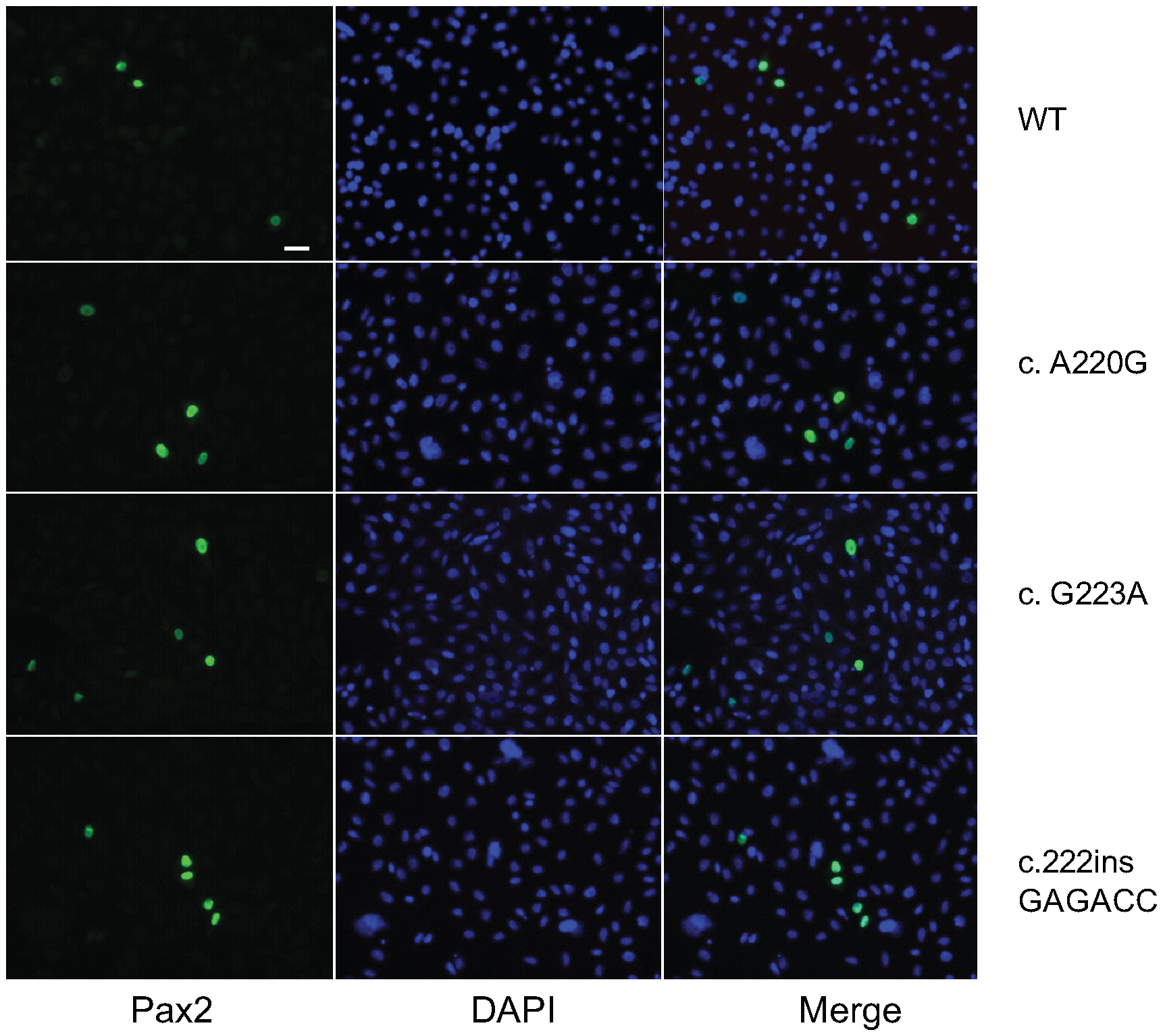 Pax2 immunofluoresence on COS-7 cells transfected with wild-type or mutant <i>Pax2</i> expression vectors.