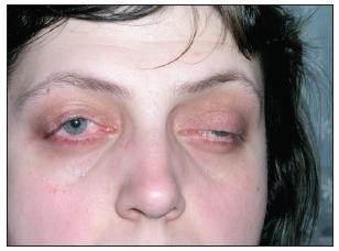 Foto obou očí po provedení parciální zevní tarzorafie vpravo