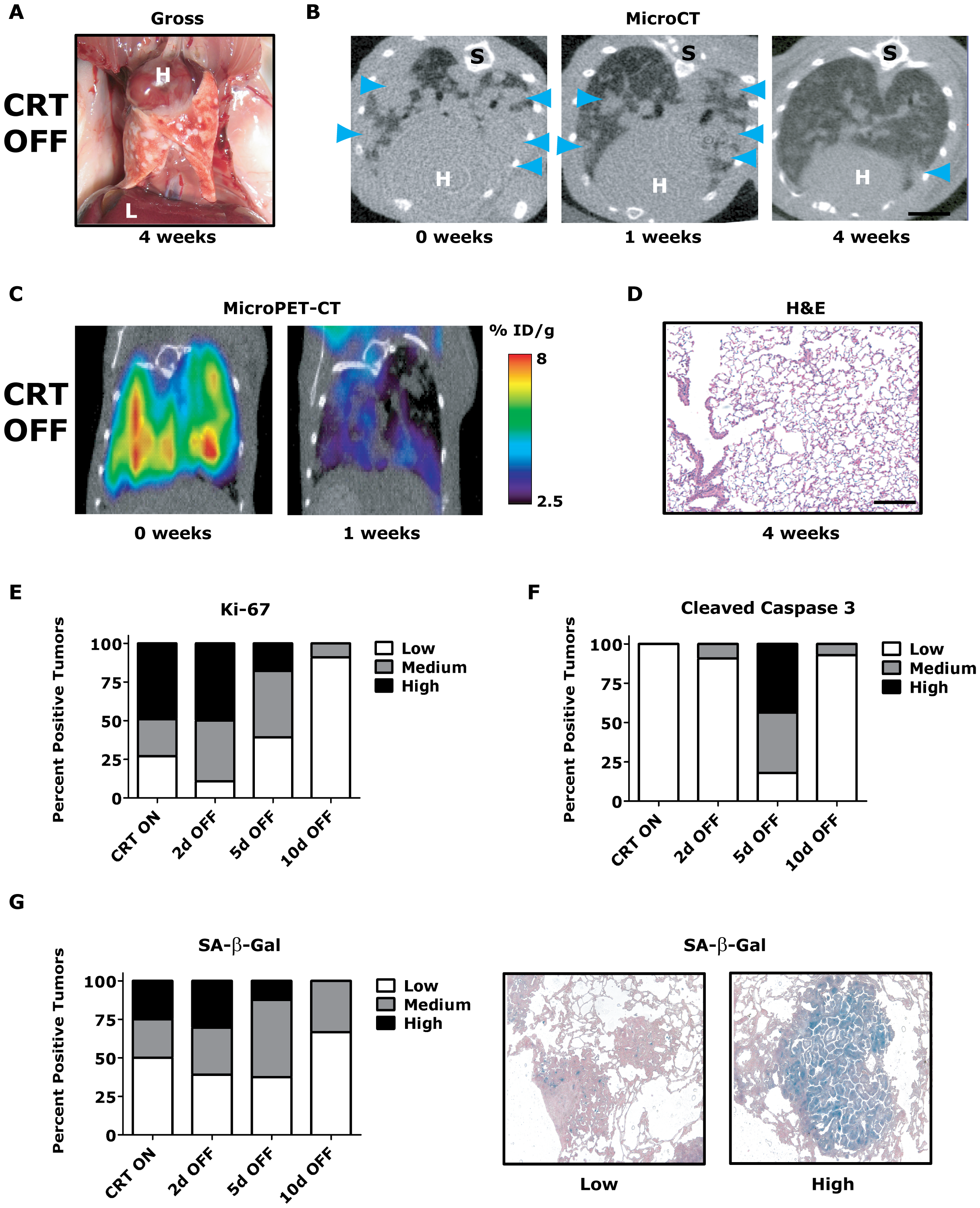 <i>Kras<sup>G12D</sup></i>/<i>Twist1</i>-induced lung tumors regress following combined oncogene inactivation.