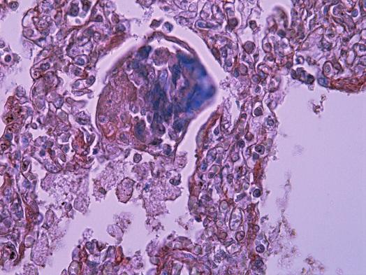 """Zvyšky fibrínovej exsudácie v pľúcnom """"hassalloidnom"""" teliesku v alveole (PTAH, 240x)."""