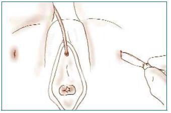 Zevní incize v genitofemorální rýze.