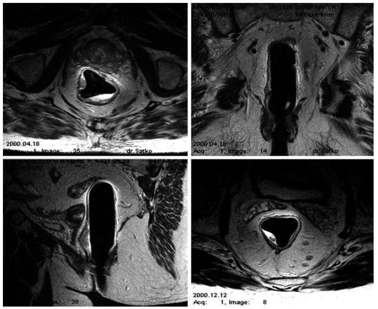MRI – Endorektálny predterapeutický staging. Fig. 1. MRI – endorectal pretherapeutic staging.