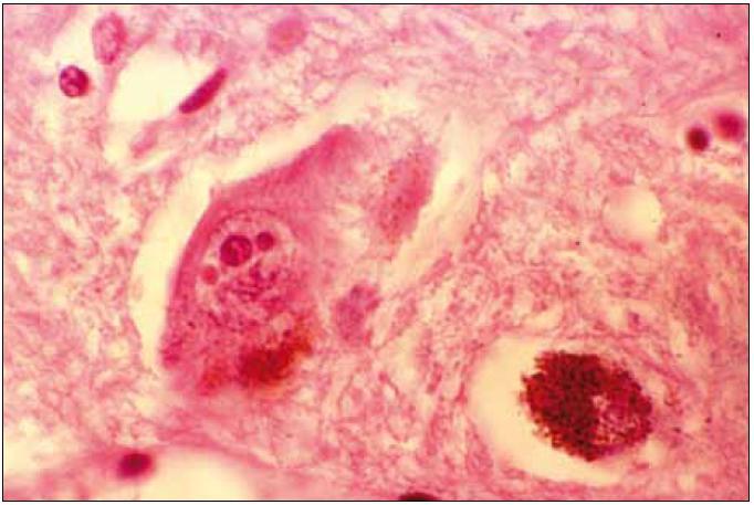 """Velký depigmentovaný neuron se dvěma """"Marinesco bodies"""". Barvení hematoxilin eozin."""