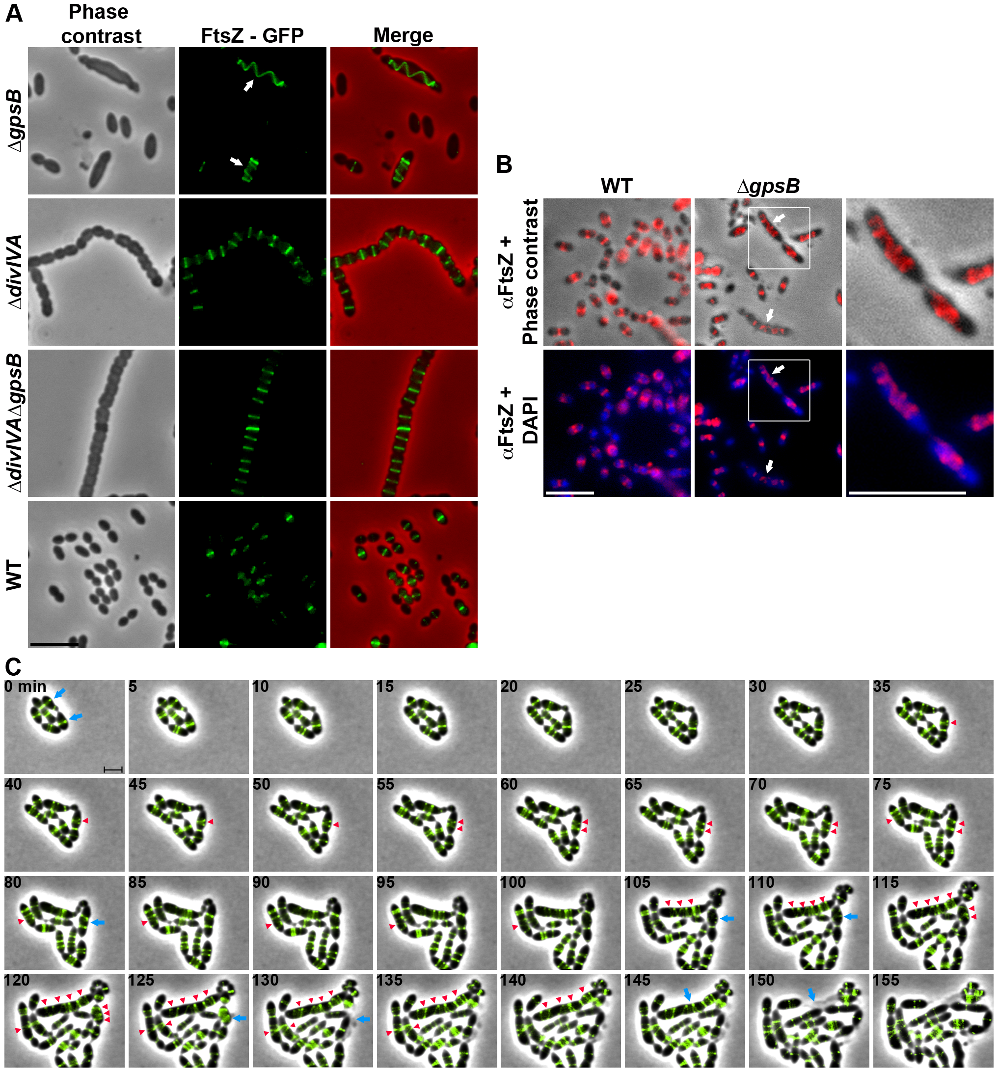 FtsZ localization in WT, Δ<i>divIVA</i>, Δ<i>gpsB</i> and Δ<i>divIVA</i>Δ<i>gpsB</i> cells.