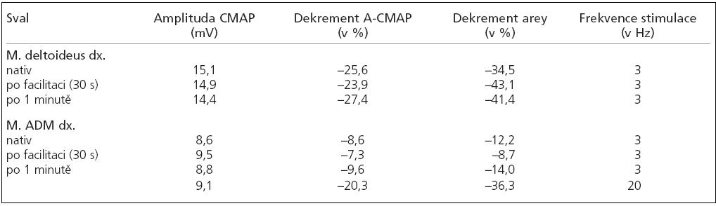 Repetitivní stimulace s výrazným dekrementem amplitudy i arey při stimulaci nízkou frekvencí (3 Hz) i vysokou frekvencí (20 Hz). (duben 2007)