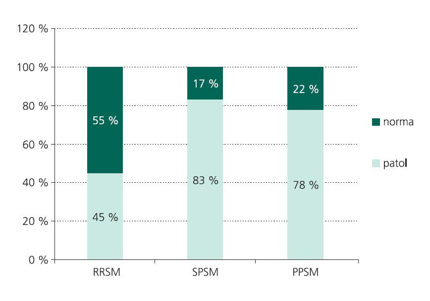 Podiel abnormálnych hodnôt latencie vlny P300 v jednotlivých klinických formách SM.
