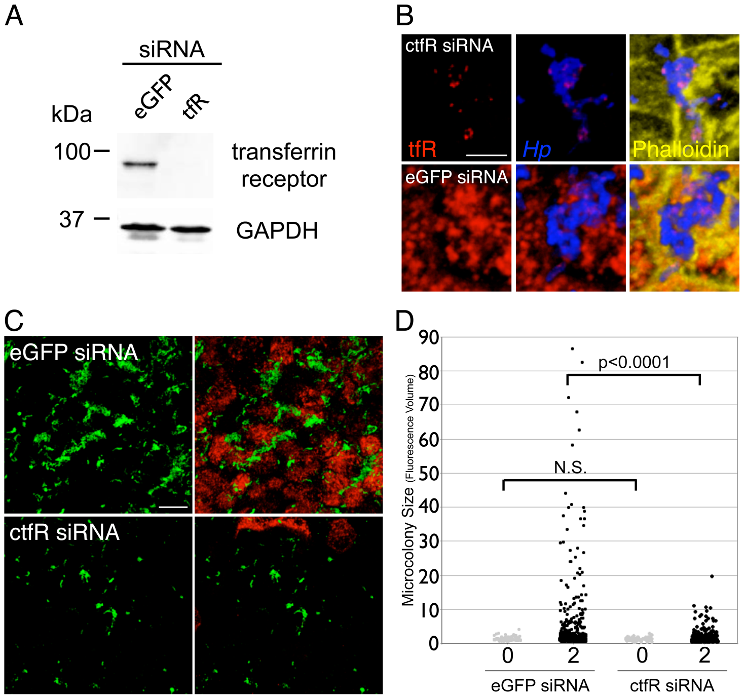 Down-regulation of host cell transferrin receptor decreases <i>Hp</i> microcolony growth on the cell surface.