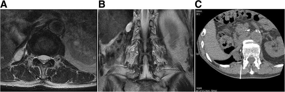 Locally recurrent, 3 cm, dedifferentiated liposarcoma in the retroperitoneal paravertebral region 1 year after initial surgery (a, b). c Under CT guidance, air was transperitoneally infused to displace the bowel just adjacent to the recurrent tumor