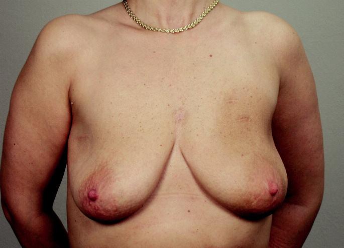 Obr. 3a. Pacientka ze skupiny B., která prodělala prs šetřící léčení karcinomu pravého prsu; stav před operací