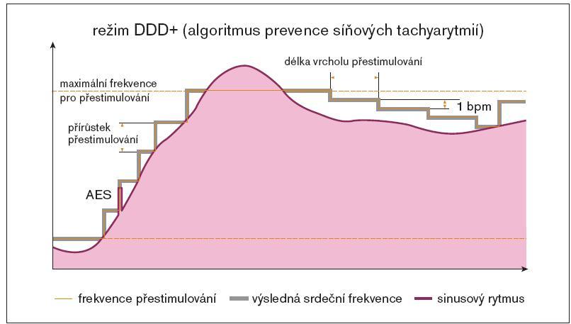 Režim trvalého přestimulování (overdrive). Při detekci spontánní síňové depolarizace je zvýšena základní stimulační frekvence o programovanou hodnotu (Overdrive increment). Zvyšování stimulační frekvence je limitováno hodnotou Maximum Overdrive rate. Po programovaném úseku s trvající stimulací je stimulační frekvence v krocích snižována do detekce vlastní síňové aktivity nebo dosažení hodnoty základní stimulační frekvence. (zdroj: Biotronik Philos II. Výukový materiál)