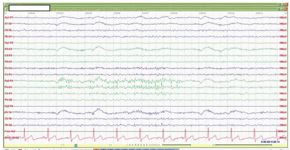 EEG u posttraumatické epilepsie po kontuzi mozku
