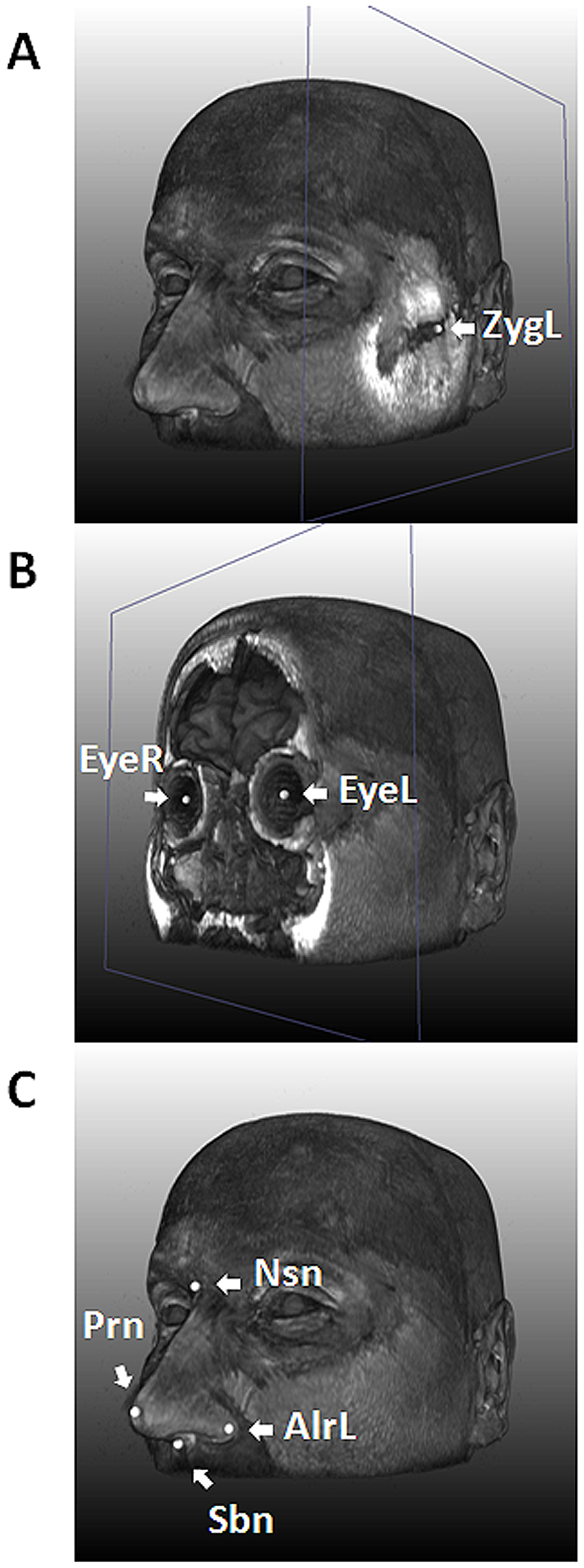 Nine facial landmarks extracted via image registration tools from 3D MRIs.