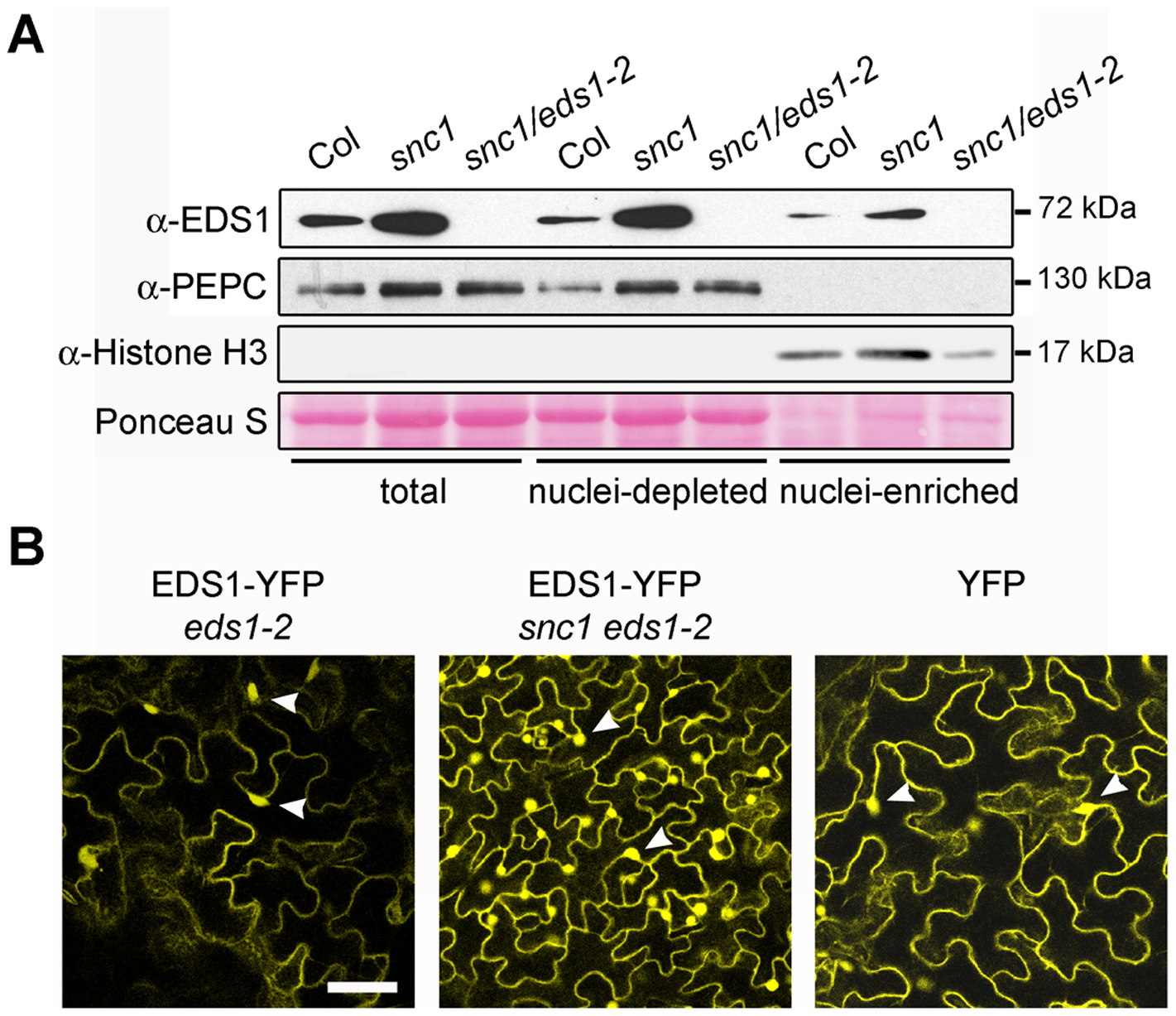 Deregulated resistance in <i>snc1</i> leads to increased accumulation of EDS1 in the nucleus and cytoplasm of <i>Arabidopsis</i> leaves.