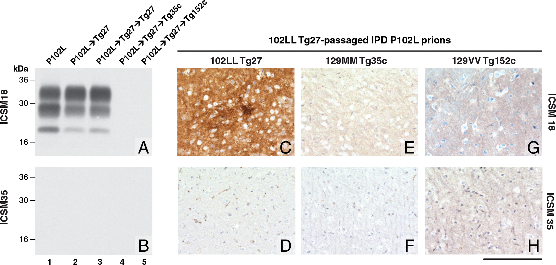 Detection of disease-related PrP by immunohistochemistry and immunoblotting in brains of transgenic mice inoculated with GSS-102L prions.