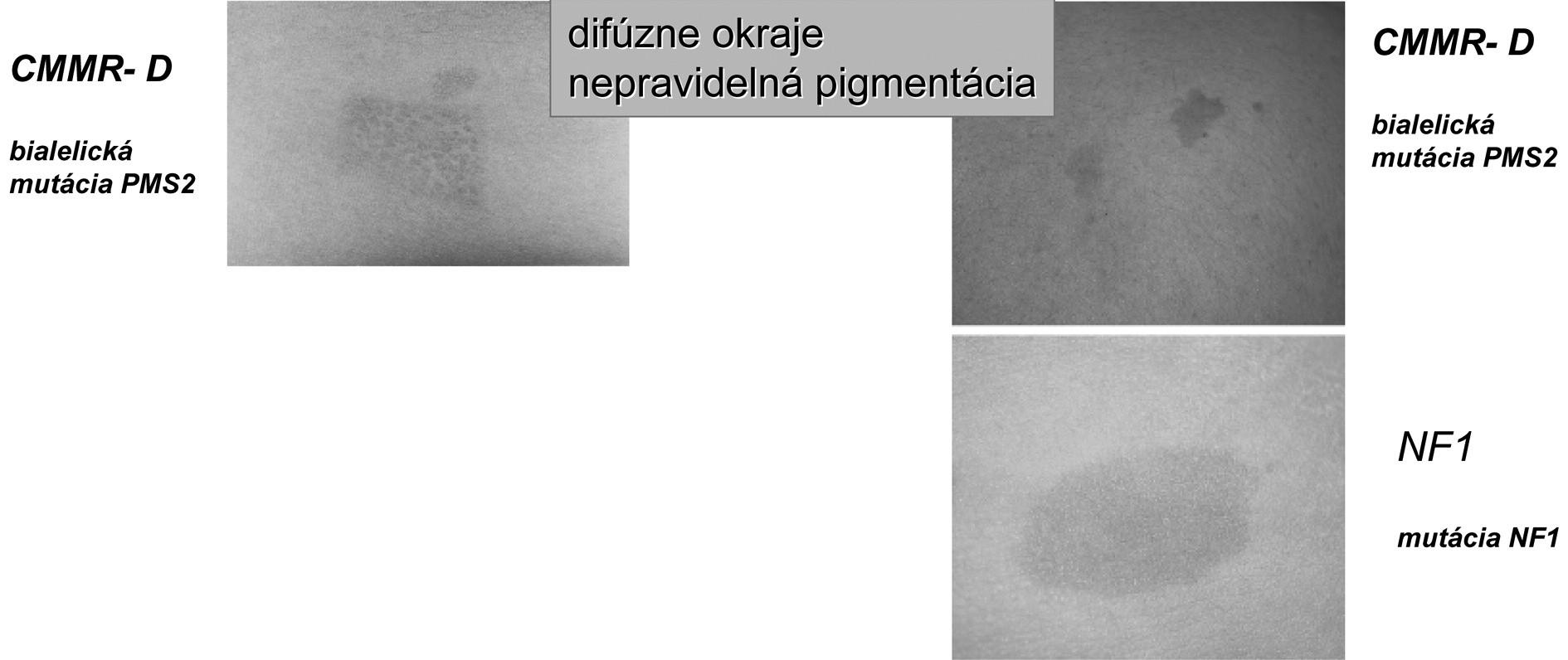 """Charakter CAL pigmentácií pri syndróme deficitu konštitučného """"Mismeč reparačného systému"""" (CMMR-D) [18]."""