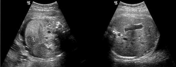 USG-obraz břicha plodu s ascitem před léčbou a po léčbě