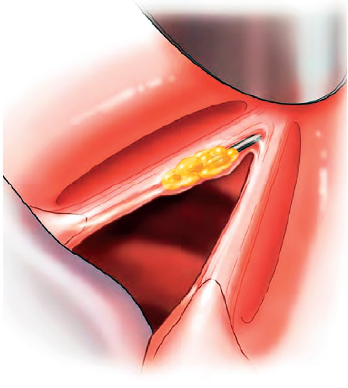 "Schéma ""Gray minithyrotomy"" (podle Rosen C. A.: Operative techniques in laryngology, Springer, 2009)."