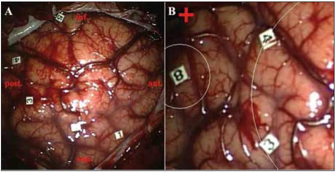Obr. 3a. Pacient č. 9. Hranice nádoru lokalizované podľa neuronavigácie (zadný okraj kortikálnej časti nádoru je označnený číslami 1–5, vpredu siaha nádorové tkanivo až ku prednému okraju durotómie). Obr. 3b. Brocove centrum (označené číslom 8) intraoperačne lokalizované pomocou PES vo vzdialenosti cca 1 cm od zadného dolného okraja kortikálnej časti nádoru. Červený kríž – Sylviova ryha.
