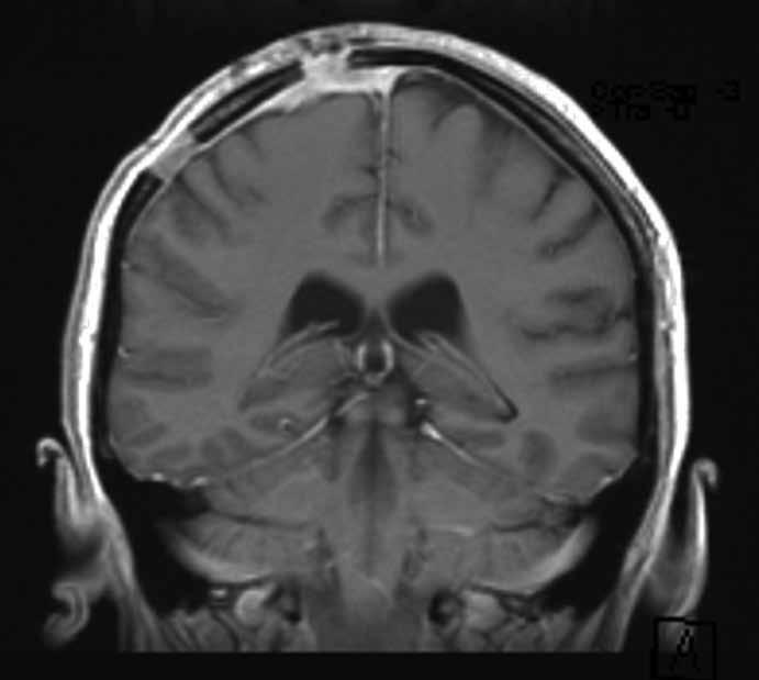 Kontrolní magnetická rezonance provedená šest měsíců po operaci nevykazovala známky recidivy tumoru. Ztluštělé enhancující pleny mozkové byly hodnoceny jako pooperační změny.