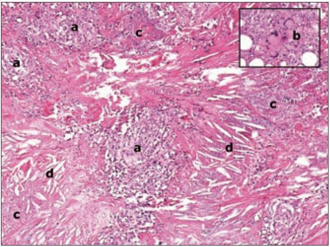 Histologický nález z ložiska nekrobiotického xantogranulomu.  V celém rozsahu koria je hustý histiocytární infiltrát (a), který zasahuje až do tukové tkáně ve spodině excize. Histiocyty mají širokou eozinofilní cytoplazmu, někde mírně zrnitou. Jádra jsou velká, světlá, chromatin je jemný, v některých buňkách jsou nevelká jadérka. Jednotlivě i ve skupinách se nacházejí obrovské histiocytární elementy s širokou cytoplazmou a vícečetnými jádry (b). Ojediněle jsou přítomny pravidelné mitózy. V infiltrátu dochází k rozsáhlé nekrotizaci (c). Přítomny jsou drobné nekrózy s jaderným popraškem i rozsáhlé oblasti nekrózy, tvořené eozinofilní hmotou s hojnými štěrbinami po cholesterolových krystalech (d).